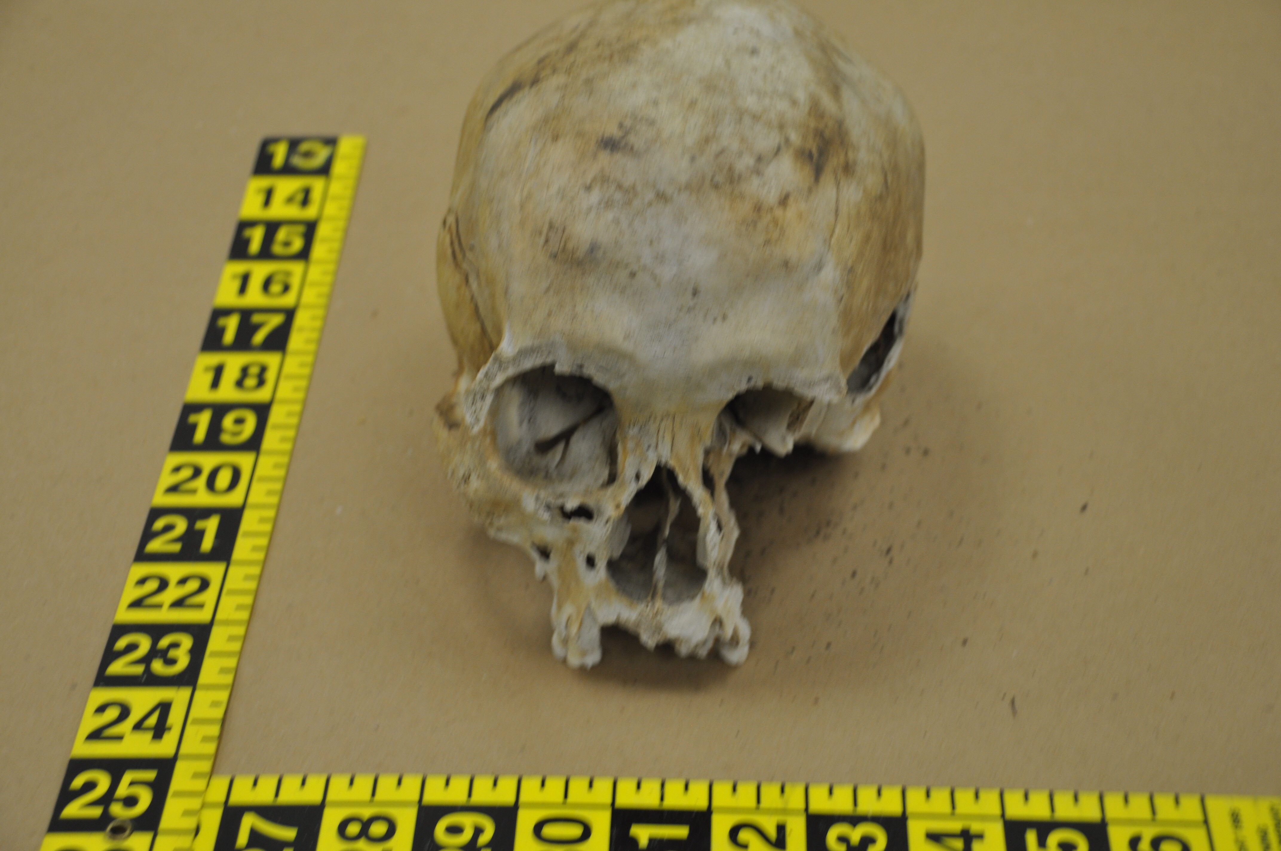 A human skull found in Brick. (File Photo)